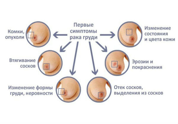 первые симптомы рака