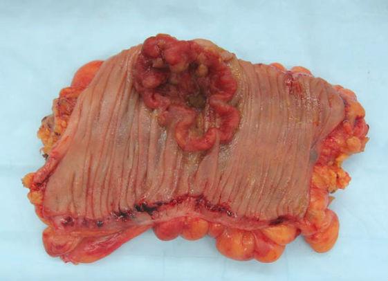 раковая опухоль кишки