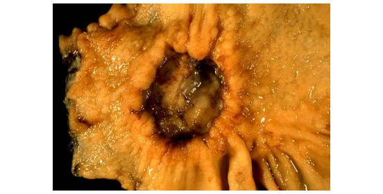 раковая опухоль в желудке