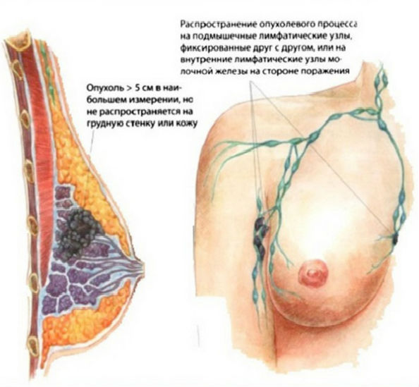 распространение рака груди