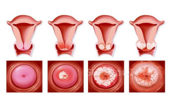 развитие рака шейки матки