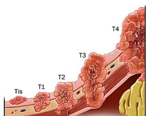 рост рака желудка