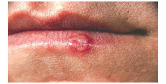 начало рака губы