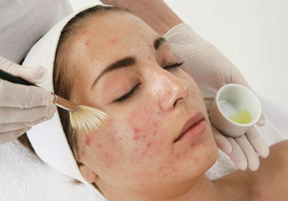 пилинг проблемной кожи