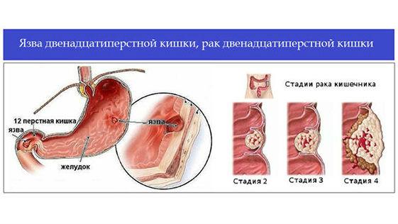 рак двенадцатиперстной кишки