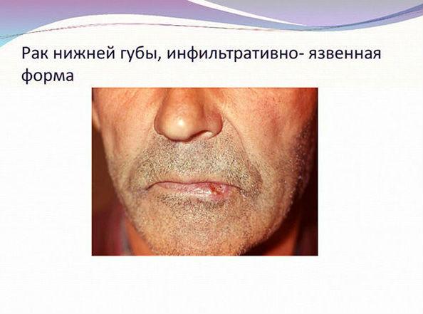 рак губы у мужчины