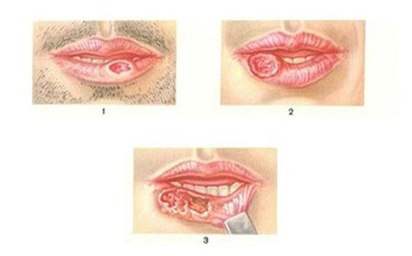 разные виды рака губы