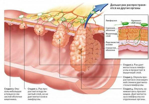 стадии рака кишки