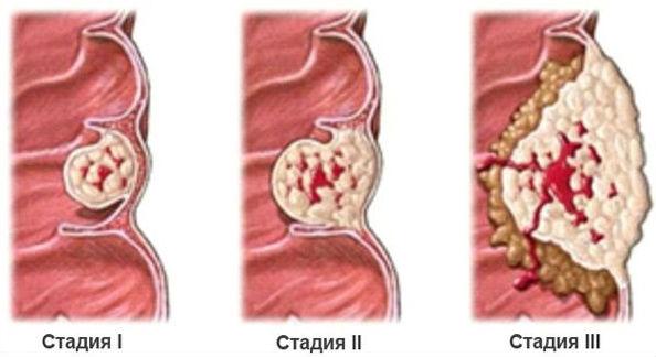 стадии развития раковой опухоли прямой кишки