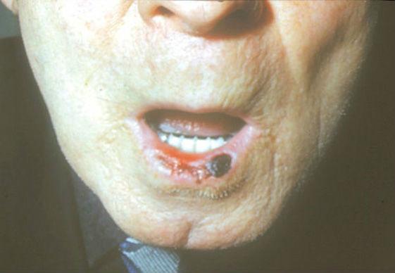 вид рака губы