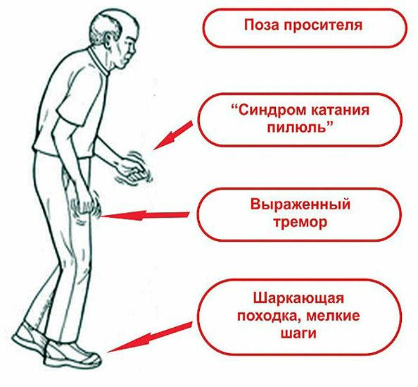 основные симптомы паркинсона