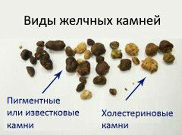 пигментные и холестериновые камни