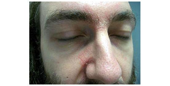 брови с перхотью
