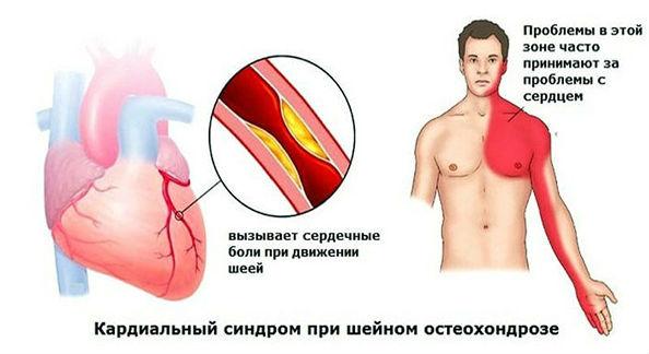 кардиальный синдром