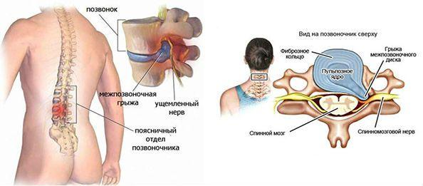 лечить грыжу пояснично-крестцового отдела
