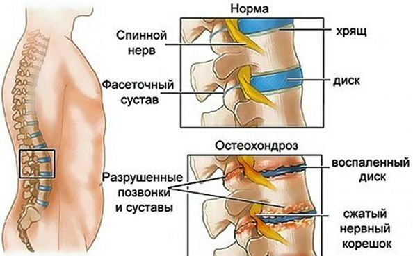 развитие остеохондроза позвоночника